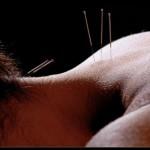 acupuncture fibromialgia
