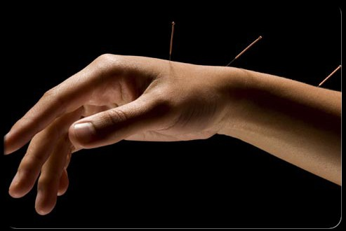 acupuncture  mano