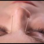 acupuncture migrañas
