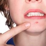 como-quitar-el-acne